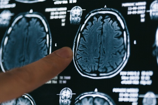 Brain-injuries:-The-cost-of-construction-risk